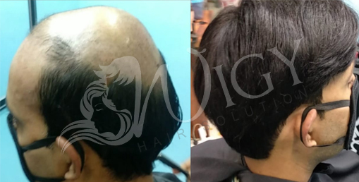 Hair Wig in Amritsar, Men hair Wig